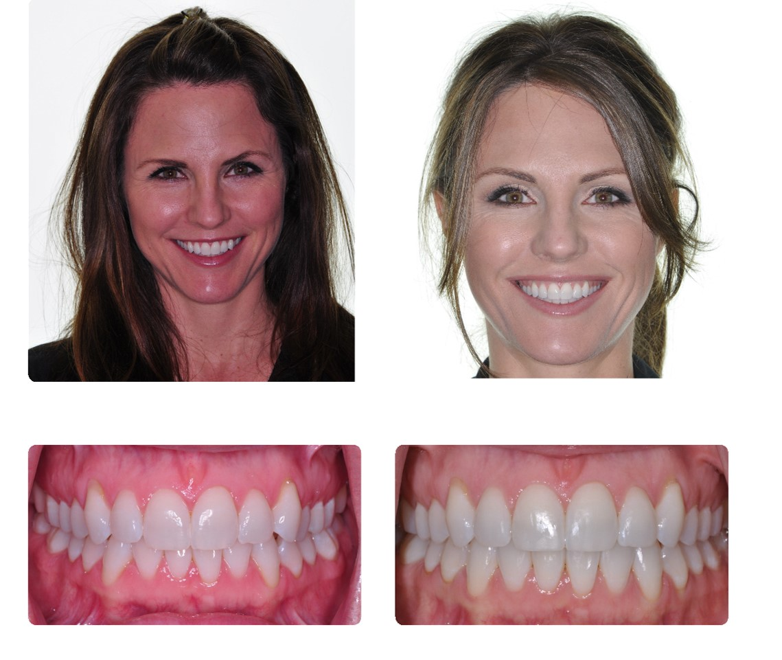 Before And After Klein Walker Orthodontics